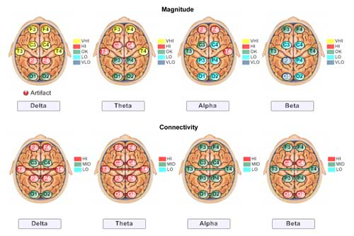 Neurofeedback Brain Map